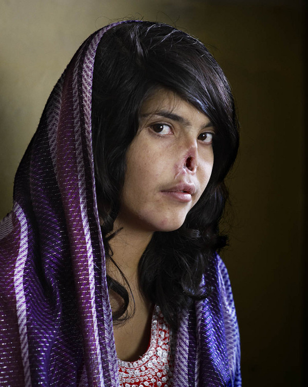 Das Portrait der Bibi Aisha ist das World Press Photo 2011. Foto: Jodi Bieber