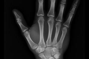 Das Duell: Röntgen zur Altersbestimmung