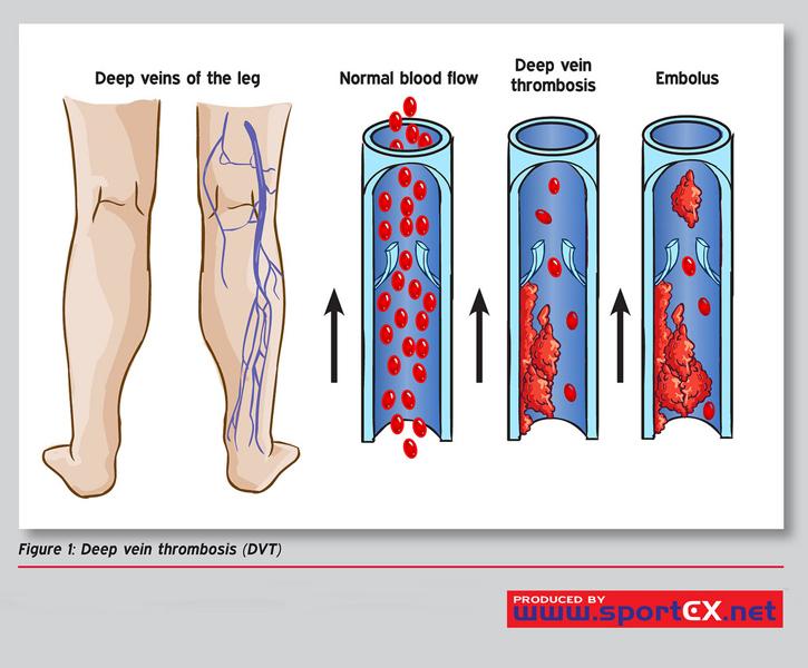 Darstellung, wie eine Venenthrombose  entsteht.